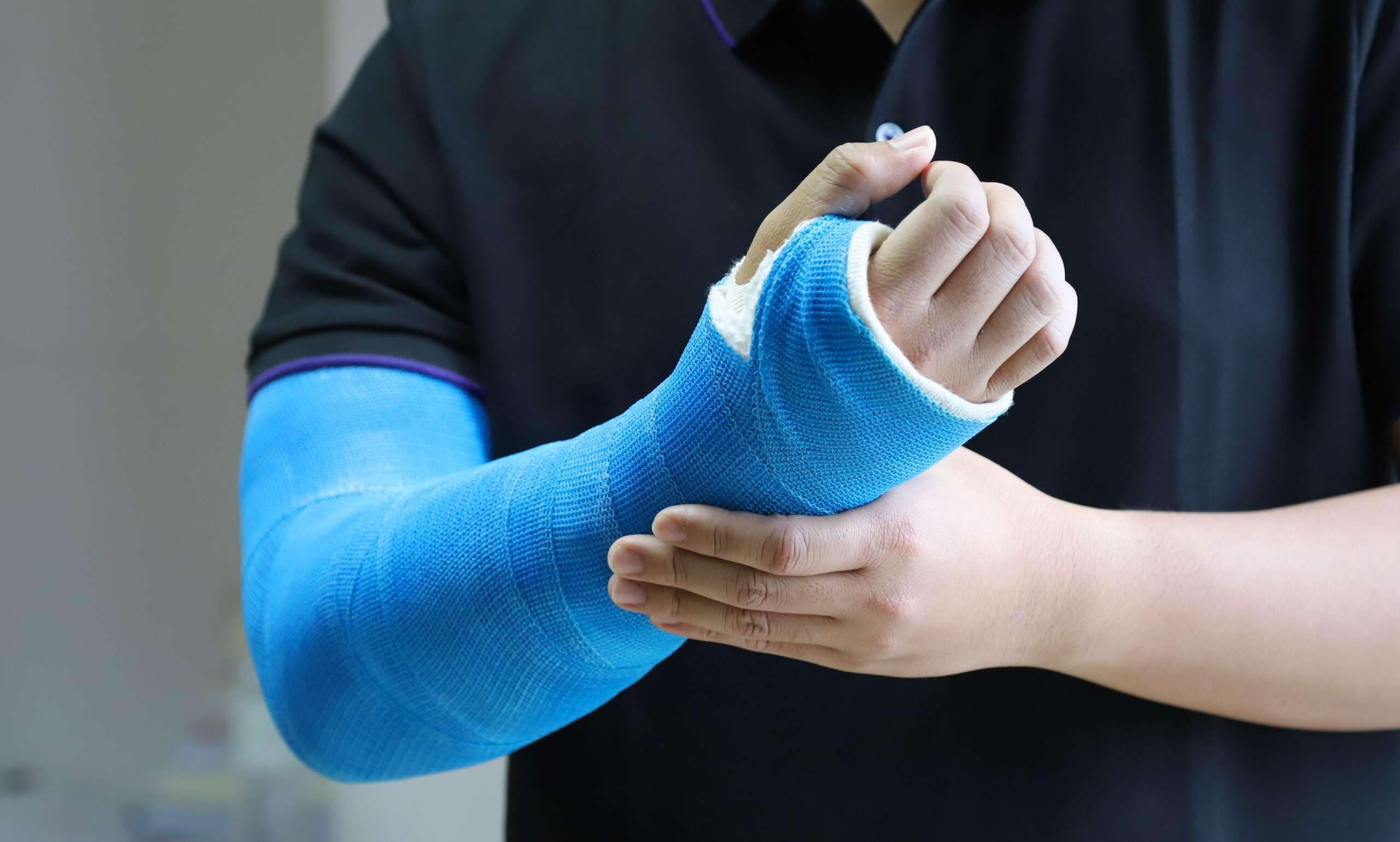 niebieski lekki gips- opatrunek gipsowy na rękę